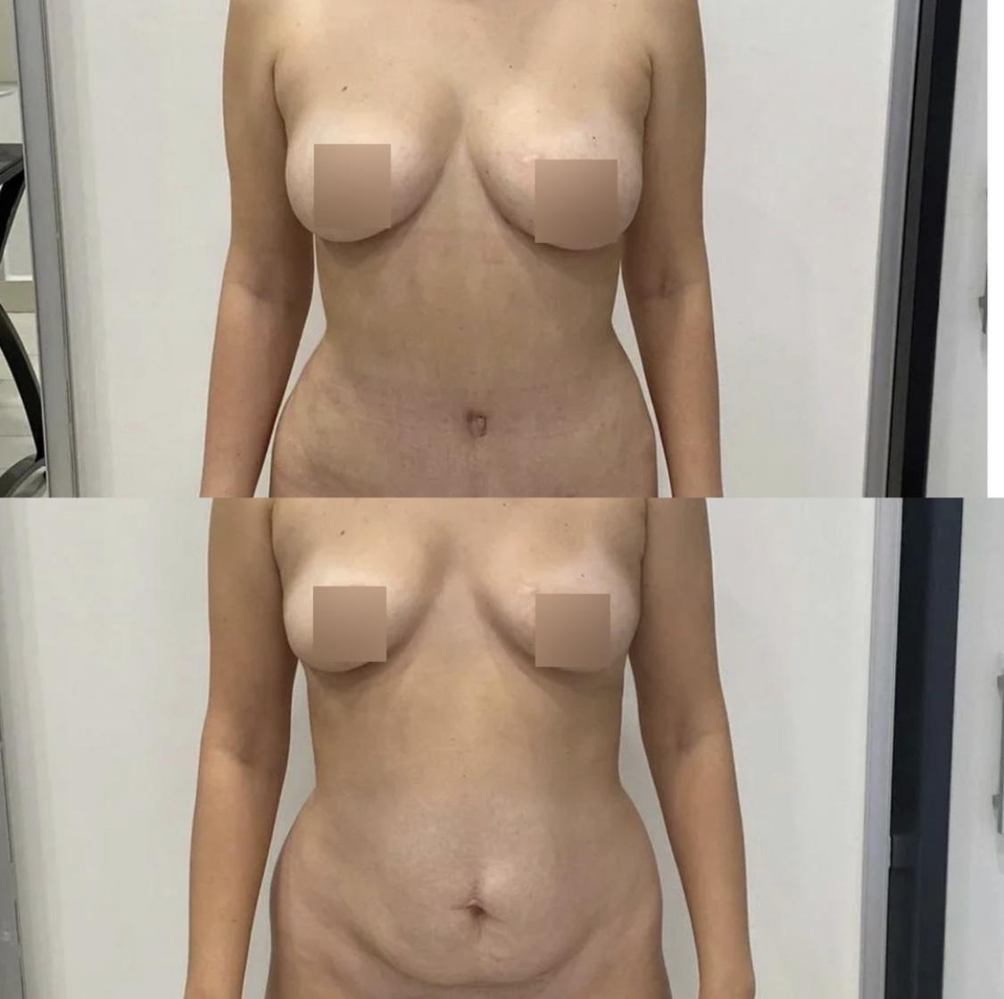 Пластика живота - фото до и после
