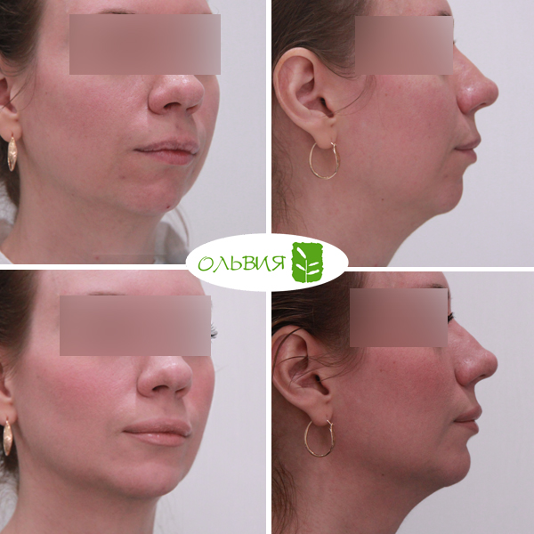Коррекция подбородка (ментопластика) - фото до и после
