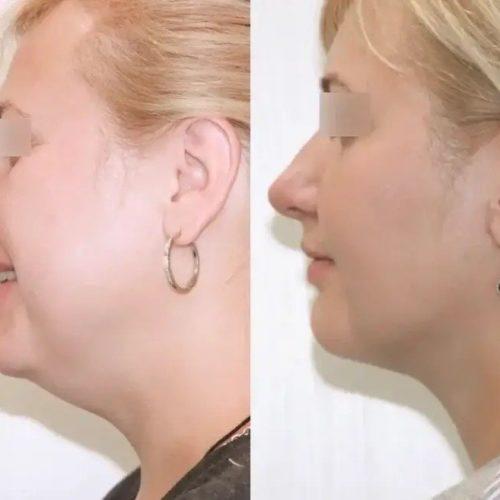 Лазерно-нитевая подтяжка шейно-подбородочного угла - фото до и после