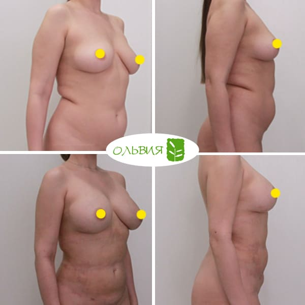 Липофилинг груди, липосакция живота, поясницы, крестца, рук, спустя 2 недели