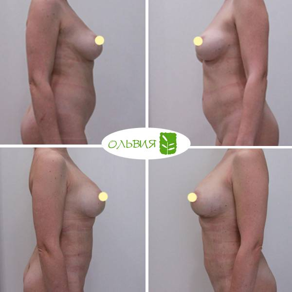 Липофилинг груди - фото до и после