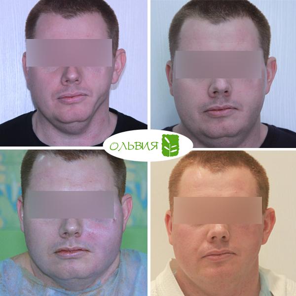 Липофилинг лица - фото до и после