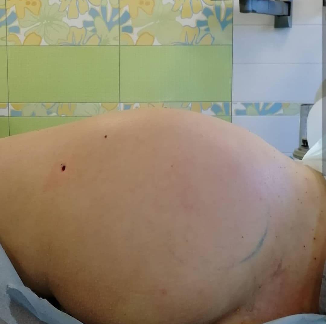 Липофилинг ягодиц и бедер - фото до и после