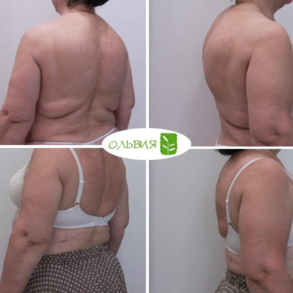 Липосакция спины - фото до и после