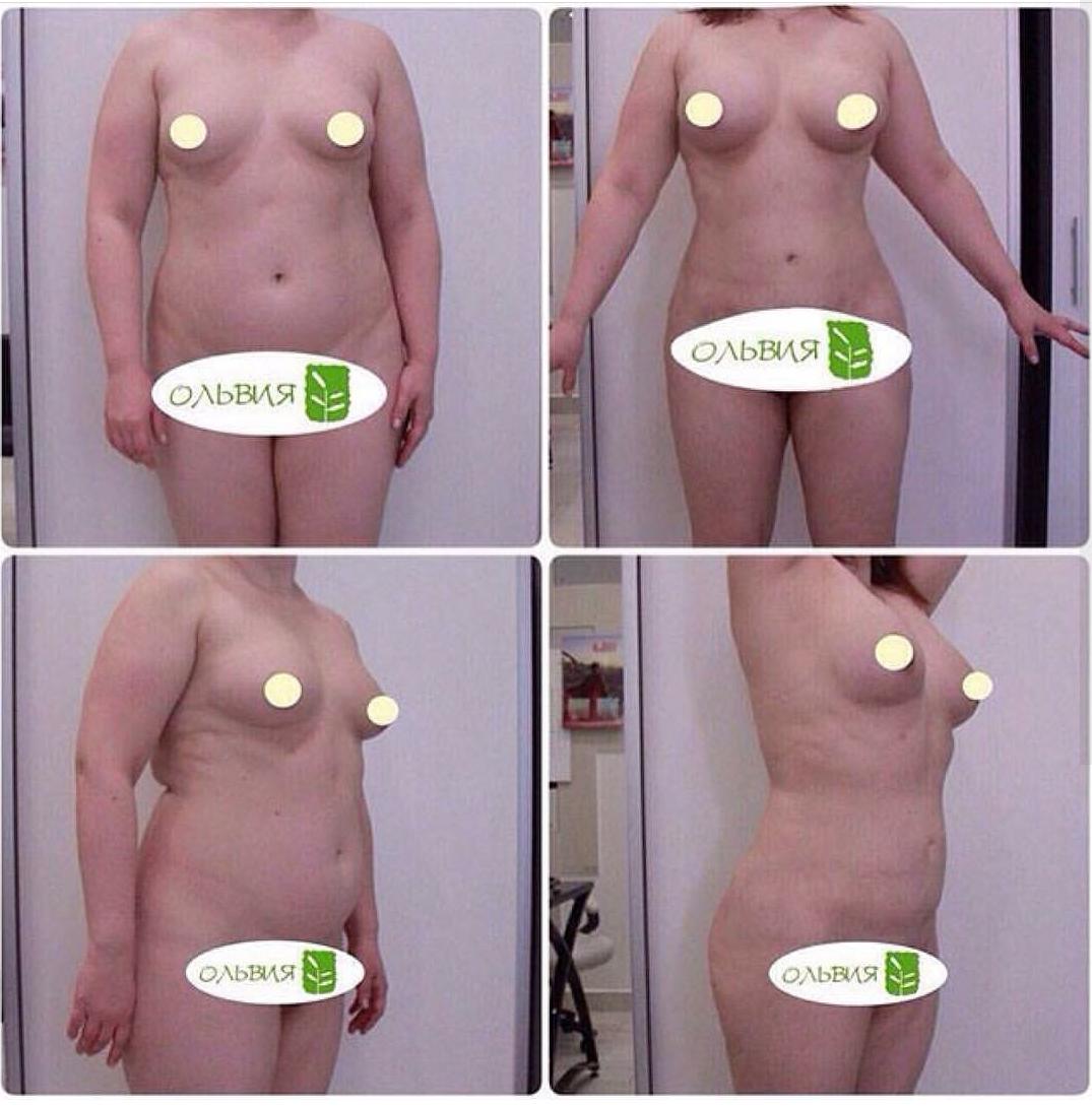 Липосакция живота - фото до и после