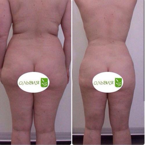 Липосакция поясницы - фото до и после