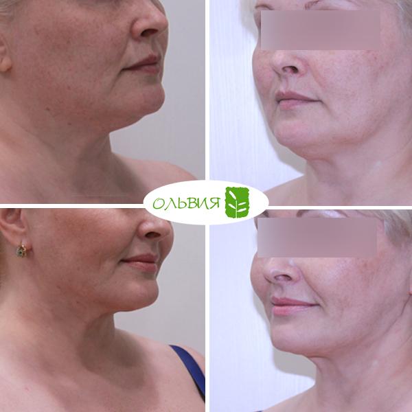 Липосакция лица - фото до и после