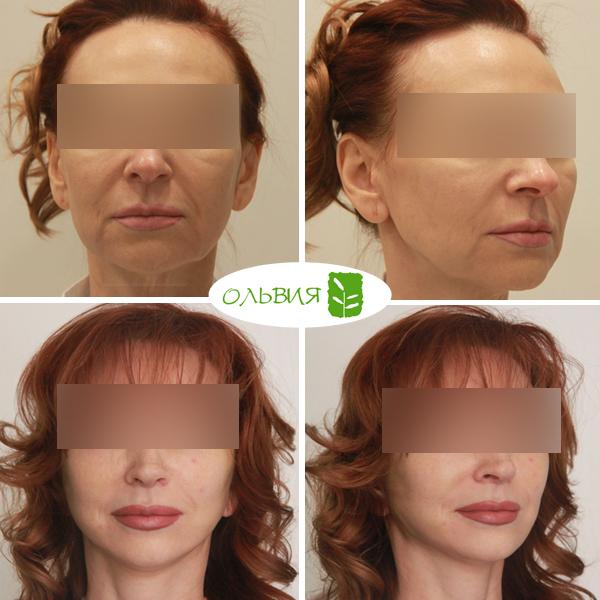 Голливудская подтяжка нижней две трети лица и шеи (smas-лифтинг) - фото до и после