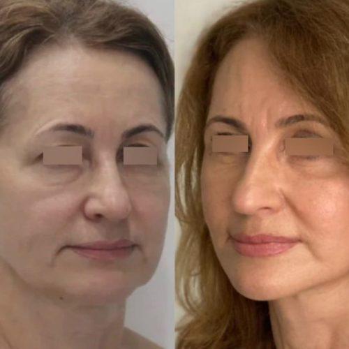 Нижняя блефаропластика с подтяжкой средней зоны лица (чек-лифтинг) - фото до и после