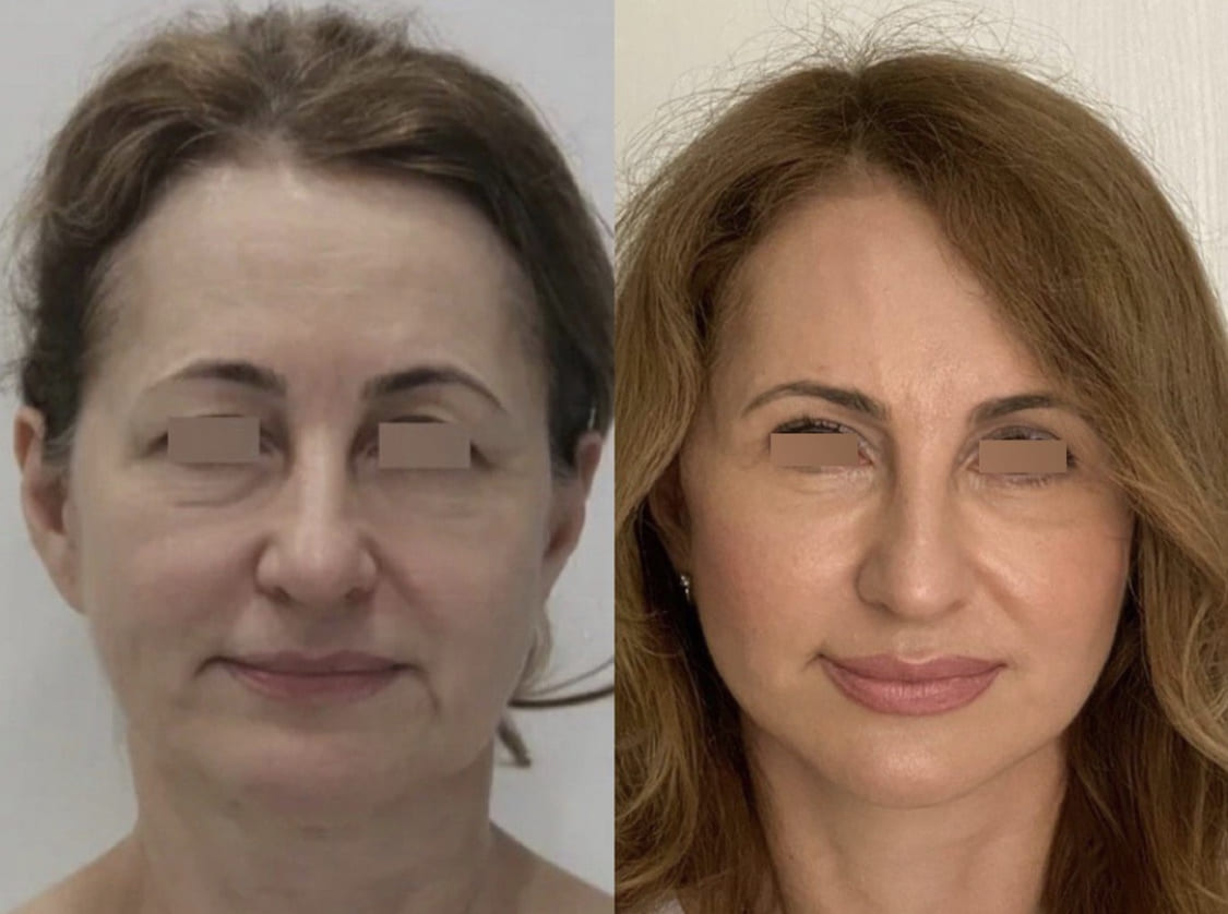 Блефаропластика (пластика век) - фото до и после