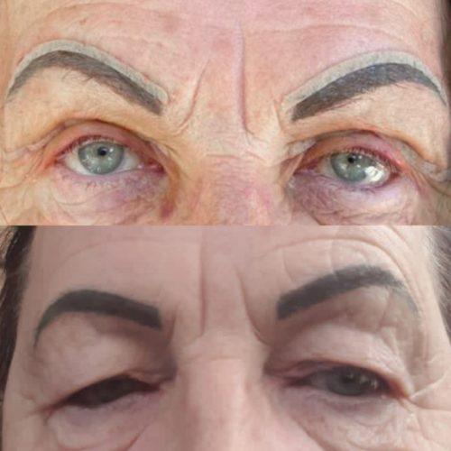 Лифтинг бровей изолированный - фото до и после