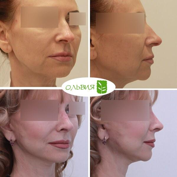 Подтяжка шеи - фото до и после