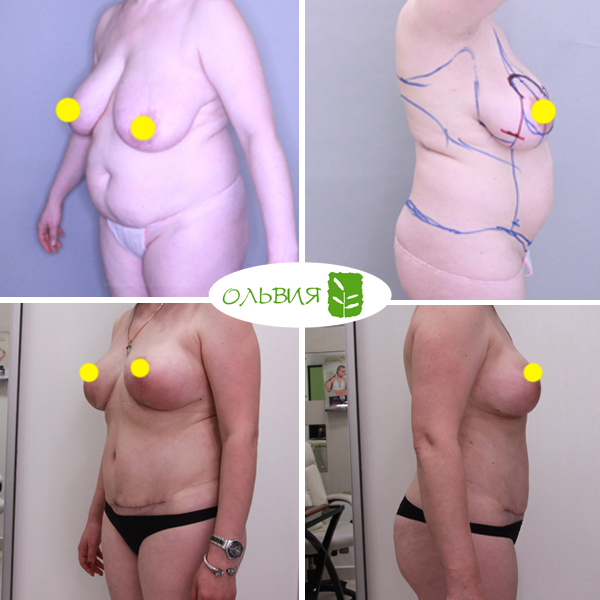 Абдоминопластика живота - фото до и после