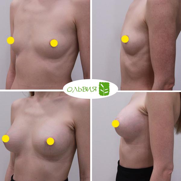 Эндоскопическое увеличение груди из подмышки - фото до и после