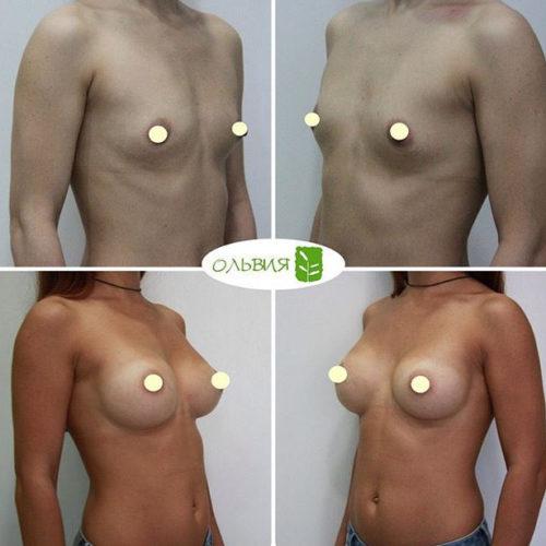 Трансаксиллярный доступ увеличения груди - фото до и после