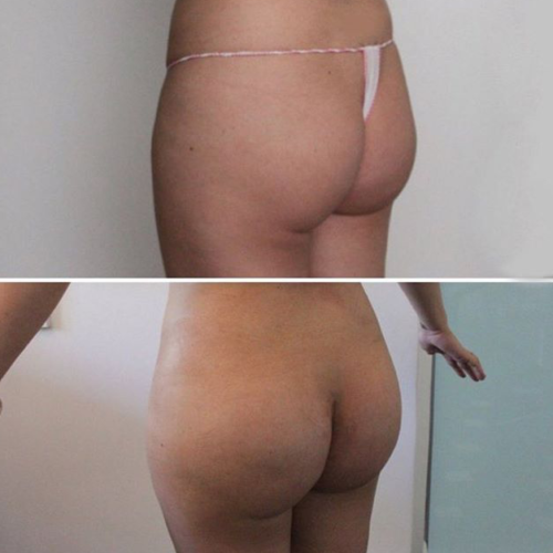 Увеличение ягодиц (глютеопластика без стоимости имплантов) - фото до и после