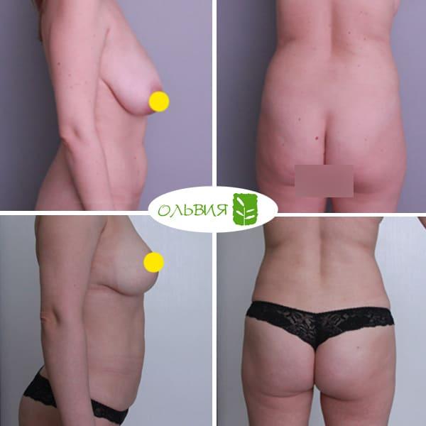 Редукция молочной железы (уменьшение) - фото до и после