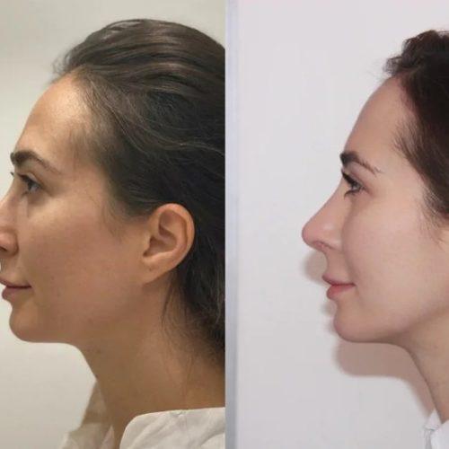 Ринопластика - фото до и после