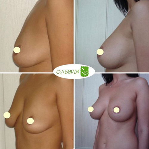Субмаммарный доступ увеличения груди - фото до и после