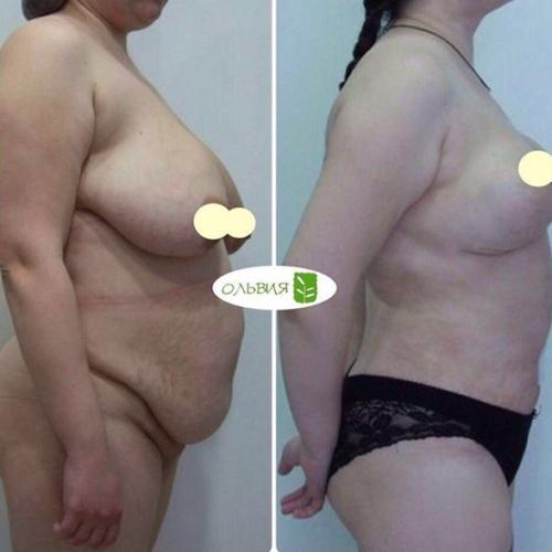 Коррекция тубулярной груди с имплантами «под ключ» - фото до и после