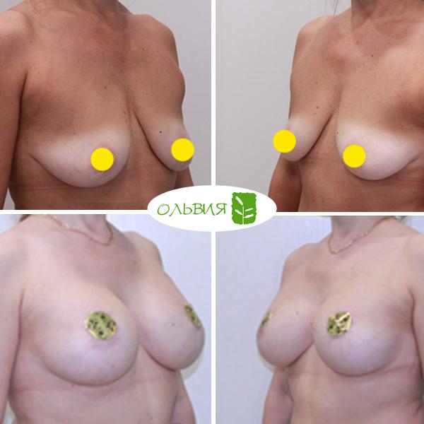 Подтяжка груди (мастопексия) - фото до и после