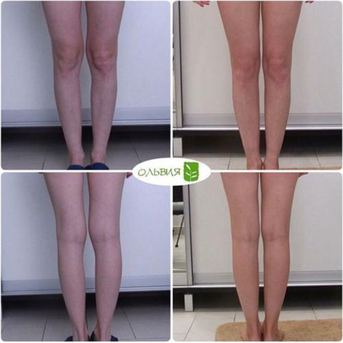 Липофилинг голеней - фото до и после