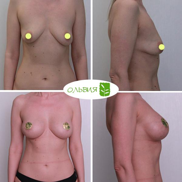 Периареолярный доступ увеличения груди - фото до и после
