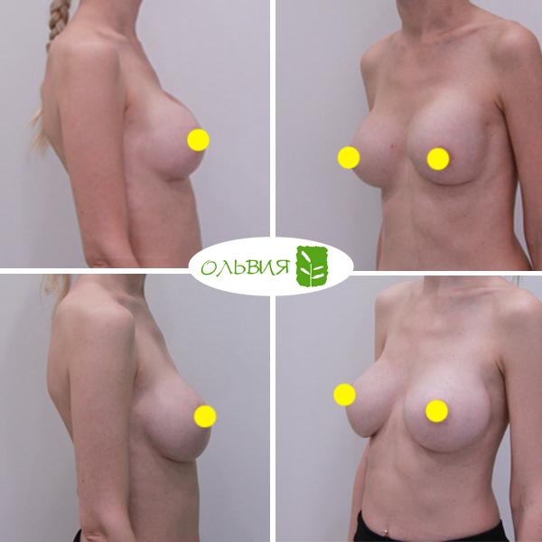 Переустановка имплантов (обе груди) - фото до и после