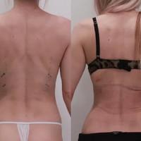 Создание тонкой талии без удаления рёбер и пластики живота по методу доктора Кудзаева - фото до и после